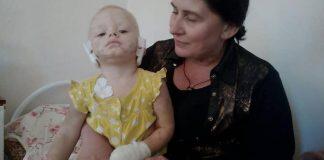 Трагедия в Харькове: собака напала на ребенка и отгрызла уши - today.ua