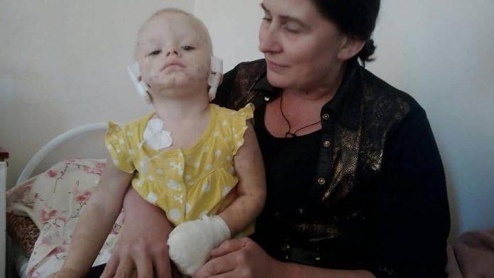 Трагедія у Харкові: собака напав на дитину і відгриз вуха - today.ua