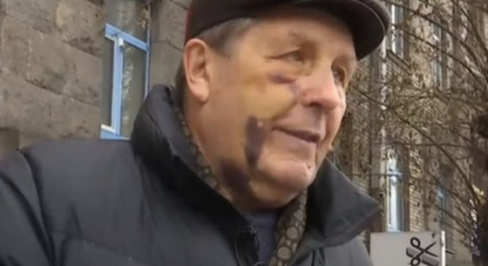 Жорстоке побиття авіаконструктора у Києві: під підозру потрапили поліцейські - today.ua