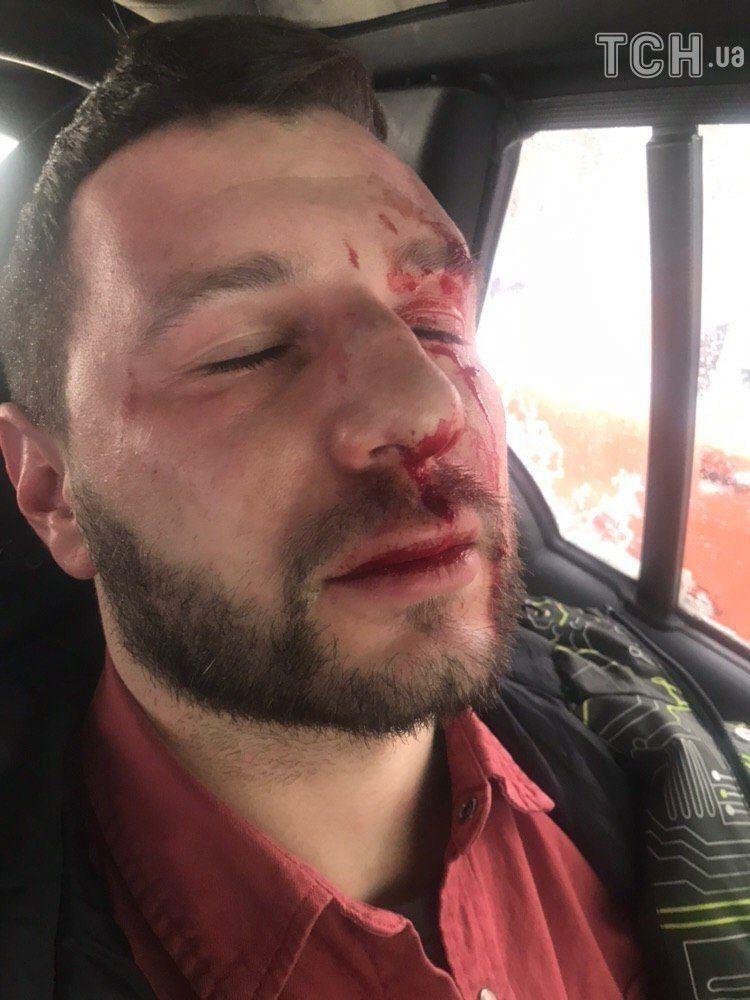 Під Києвом жорстоко побили директора Олі Цибульської: співачка розповіла подробиці