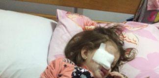 Скандал у дитячому садку: трирічній дівчинці прокололи око олівцем - today.ua