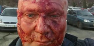 В Киеве жестоко избили известного догхантера Святогора - today.ua