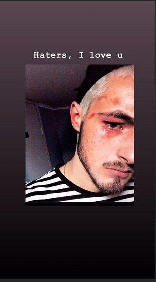 У столичному метро жорстоко побили учасника Нацвідбору на Євробачення-2019