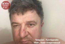 У Києві п'яний чоловік побив дружину і викинув з вікна собаку на очах у дітей - today.ua