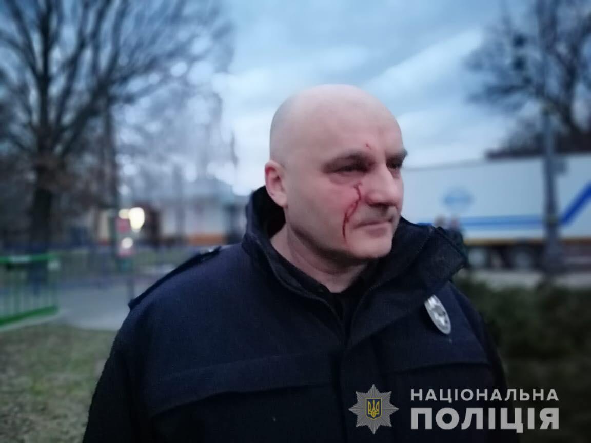 Аваков пообіцяв притягнути до відповідальності винних у побитті поліцейських