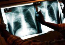 Супрун порадила, як захиститися від туберкульозу - today.ua