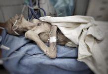 """""""Середньовіччя"""": у Дніпрі син привіз до лікарні жінку в комі третього ступеня - today.ua"""