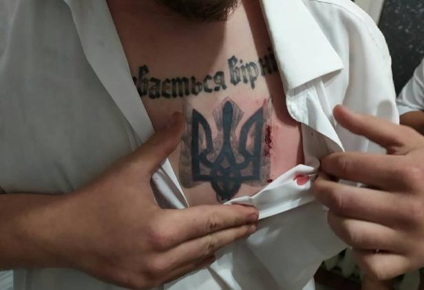"&quotЦілилися в серце"": Кандидата в нардепи пошматували ножем (фото) - today.ua"