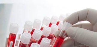 Група крові і рак: хто ризикує найбільше - today.ua