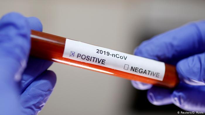 Найбільша кількість летальних випадків: для кого коронавірус становить особливу небезпеку - today.ua