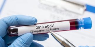 """Тесты на коронавирус в Украине: какие есть и где их взять"""" - today.ua"""