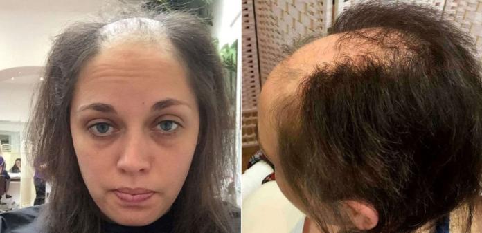 Дівчина перед весіллям залишилася без волосся, але лікарям вдалося зробити неймовірне - today.ua