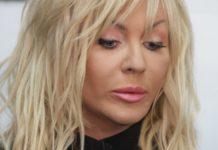 """Білик обурила своїх шанувальників невдалою пластикою: """"Відпиляла половину обличчя"""" - today.ua"""