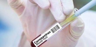 Кількість хворих коронавірусом в Україні за добу різко збільшилася: оновлені дані МОЗ на 1 квітня - today.ua