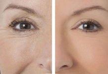 Перемогти глибокі зморшки допоможуть маски: рецепти натуральних засобів для обличчя - today.ua