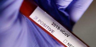 """Коронавірус в Україні йде на спад: кількість хворих за добу різко знизилася"""" - today.ua"""