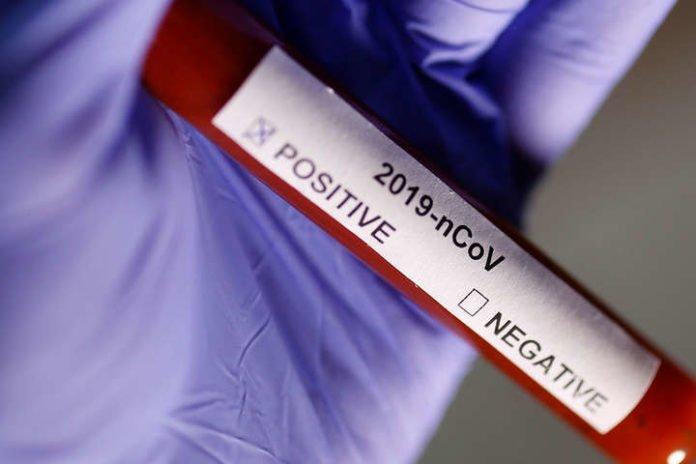 Коронавірус в Україні йде на спад: кількість хворих за добу різко знизилася - today.ua
