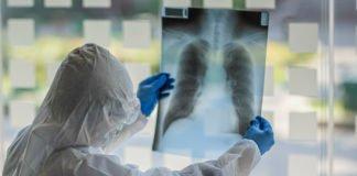 """Хто більше за інших ризикує заразитися коронавірусом: у МОЗ зробили заяву """" - today.ua"""
