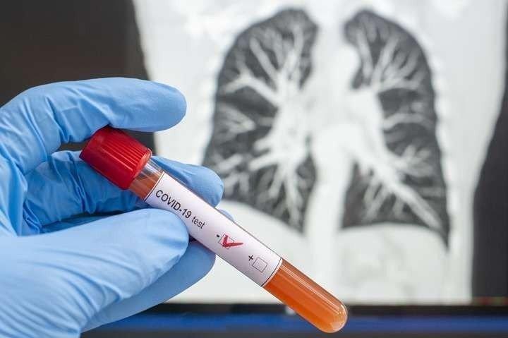 В Україні зафіксовано новий антирекорд по коронавірусу: кількість хворих перевищила 1200 осіб - today.ua