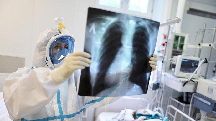 Пандемія COVID-19 вийшла з-під контролю: ВООЗ очікує в Україні до 9 тисяч хворих на день
