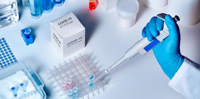 Тест на коронавірус тепер можна буде робити в приватних лабораторіях безкоштовно