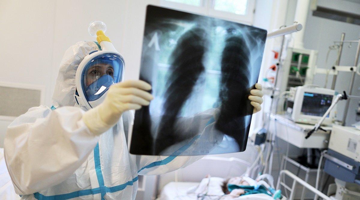 Вчені назвали небезпечний період після COVID-19, коли багато людей вмирають