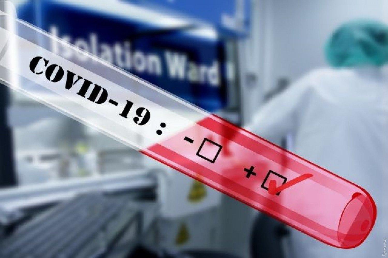 У МОЗ назвали області, де фіксують випадки повторного зараження COVID-19