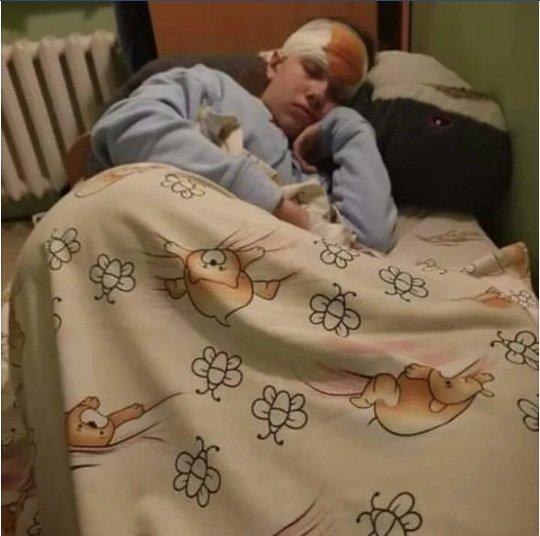 Резонансна ДТП у Києві на проспекті Лобановського: 12-річна дівчинка втратила зір
